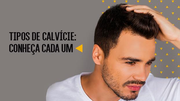 A calvície é um problema que afeta principalmente os homens, em consequência ao hormônio masculino ser o maior responsável pela queda de cabelo.