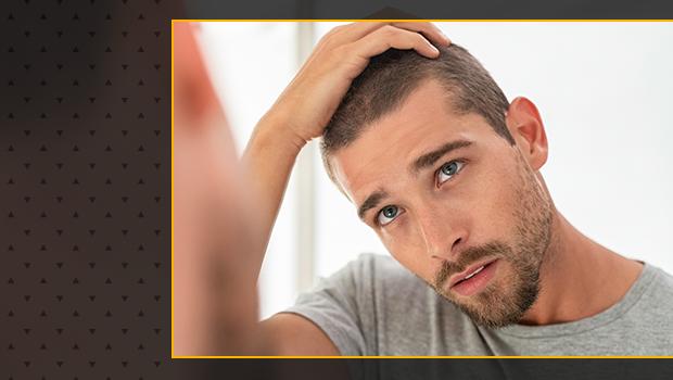 Como fazer nascer cabelo novamente livre de calvície