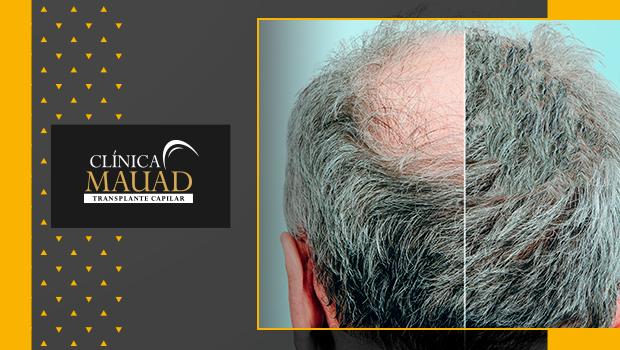 figura de cabelo masculino para representar as causas da calvície