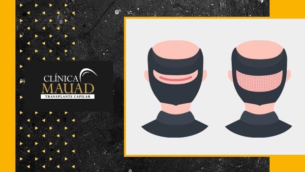 Desenho de duas cabeças ilustrando os tipos de implante capilar